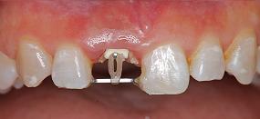 Case5.上顎前歯の矯正的挺出_6