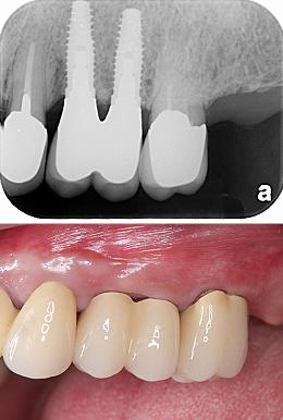 Case6.左上のインプラント治療(GBR)_治療後③