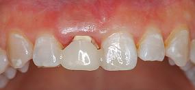 Case5.上顎前歯の矯正的挺出_7