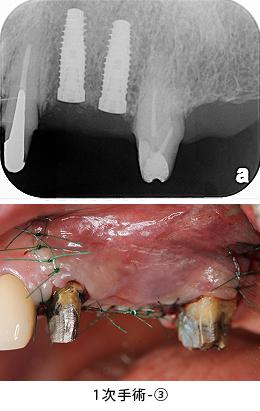 Case6.左上のインプラント治療(GBR)_1次手術-③