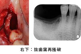 Case7.両側臼歯部のインプラント治療(サイナスリフト+GBR)4