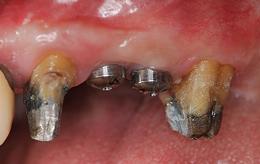 Case6.左上のインプラント治療(GBR)_治療後①