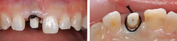 Case5.上顎前歯の矯正的挺出_14