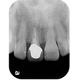 Case5.上顎前歯の矯正的挺出_17