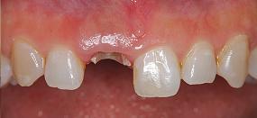 Case5.上顎前歯の矯正的挺出_4