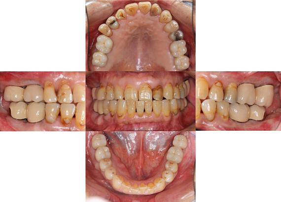 Case7.両側臼歯部のインプラント治療(サイナスリフト+GBR)27