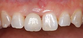 Case5.上顎前歯の矯正的挺出_15