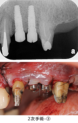 Case6.左上のインプラント治療(GBR)_2次手術-③