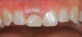 Case5.上顎前歯の矯正的挺出_8