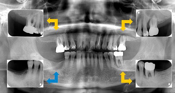 Case7.両側臼歯部のインプラント治療(サイナスリフト+GBR)2
