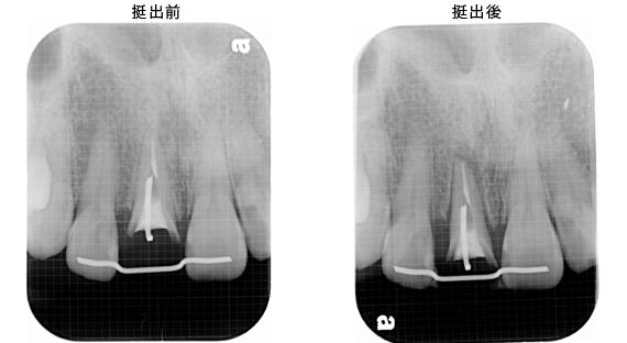 Case5.上顎前歯の矯正的挺出_10