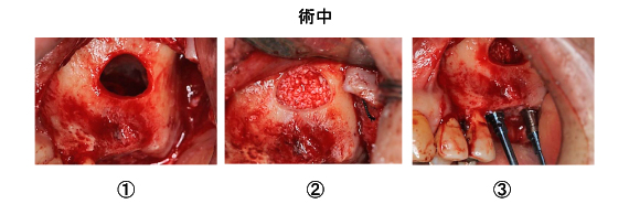 Case7.両側臼歯部のインプラント治療(サイナスリフト+GBR)6