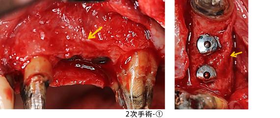 Case6.左上のインプラント治療(GBR)_2次手術-①