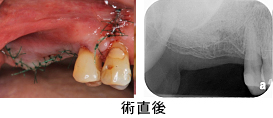 Case7.両側臼歯部のインプラント治療(サイナスリフト+GBR)11