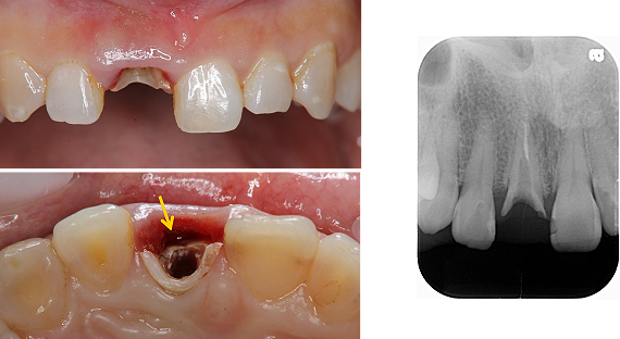 Case5.上顎前歯の矯正的挺出_2_3