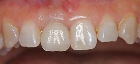 Case5.上顎前歯の矯正的挺出_16
