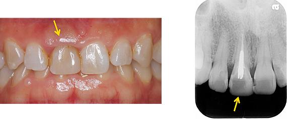 Case5.上顎前歯の矯正的挺出_1