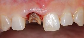 Case5.上顎前歯の矯正的挺出_13
