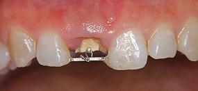 Case5.上顎前歯の矯正的挺出_9