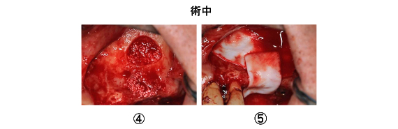 Case7.両側臼歯部のインプラント治療(サイナスリフト+GBR)7