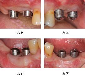 Case7.両側臼歯部のインプラント治療(サイナスリフト+GBR)25