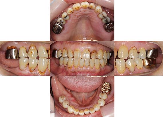 Case7.両側臼歯部のインプラント治療(サイナスリフト+GBR)1