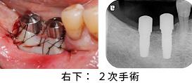 Case7.両側臼歯部のインプラント治療(サイナスリフト+GBR)22