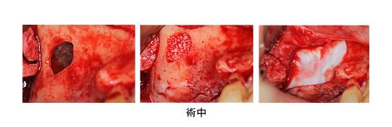 Case7.両側臼歯部のインプラント治療(サイナスリフト+GBR)10