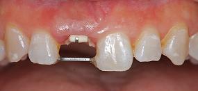Case5.上顎前歯の矯正的挺出_5