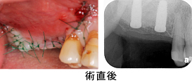 Case7.両側臼歯部のインプラント治療(サイナスリフト+GBR)19