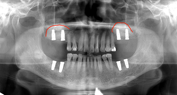 Case7.両側臼歯部のインプラント治療(サイナスリフト+GBR)20