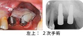 Case7.両側臼歯部のインプラント治療(サイナスリフト+GBR)23