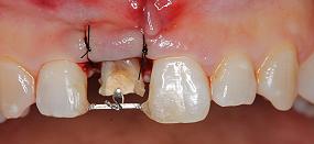 Case5.上顎前歯の矯正的挺出_12