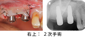 Case7.両側臼歯部のインプラント治療(サイナスリフト+GBR)24