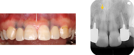 Case6.メタルタトゥーを結合組織移植によって治療した症例_1