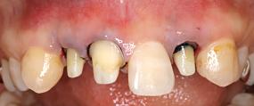 Case6.メタルタトゥーを結合組織移植によって治療した症例_5