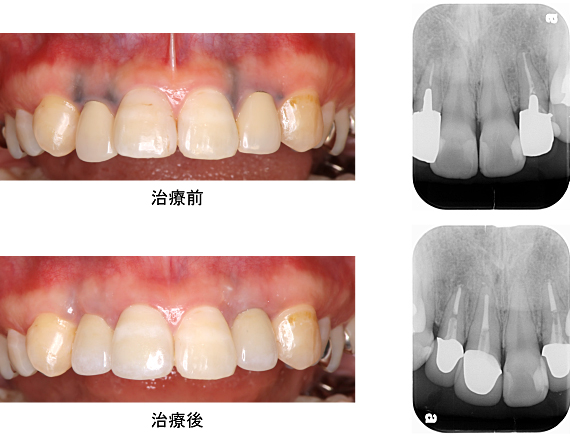Case6.メタルタトゥーを結合組織移植によって治療した症例_6