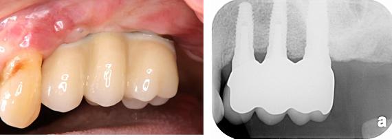 Case8.左上臼歯部のインプラント治療(サイナスリフト+垂直的GBR)_13