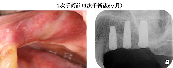 Case8.左上臼歯部のインプラント治療(サイナスリフト+垂直的GBR)_9