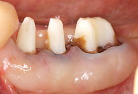 Case6.歯冠延長術と遊離歯肉移植の併用症例_6