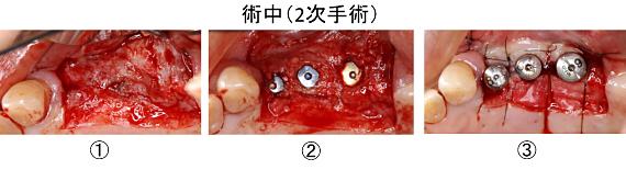 Case8.左上臼歯部のインプラント治療(サイナスリフト+垂直的GBR)_10