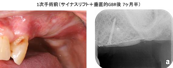 Case8.左上臼歯部のインプラント治療(サイナスリフト+垂直的GBR)_6